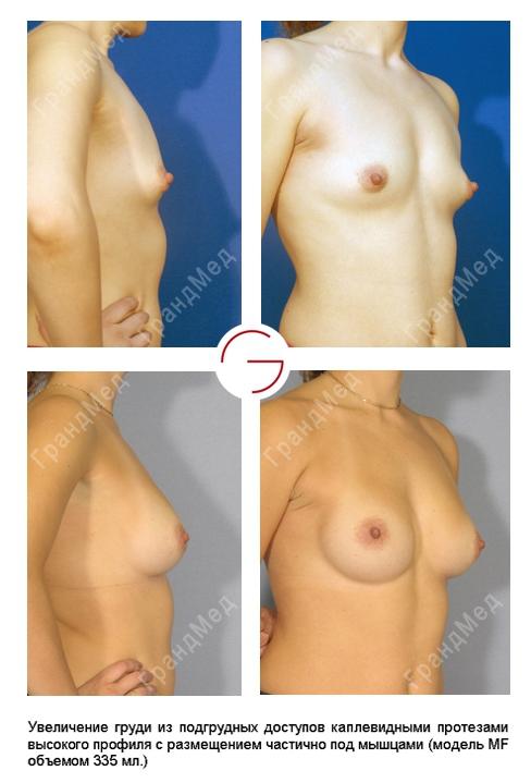 Увеличение груди 14 лет