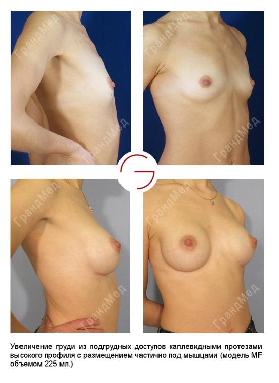 Операции по увеличению груди в ростове-на-дону