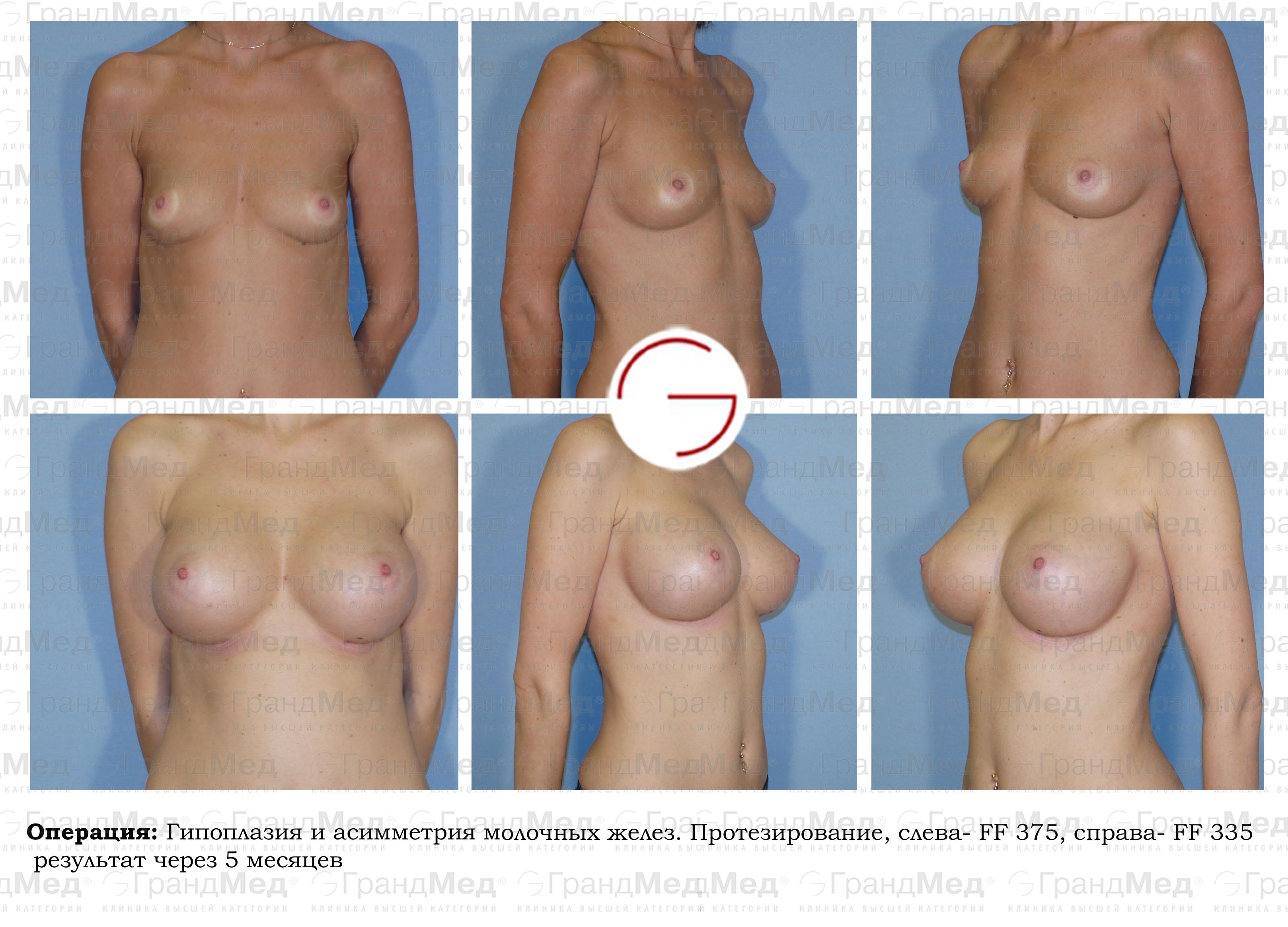 Отзывы мужчин об увеличении груди